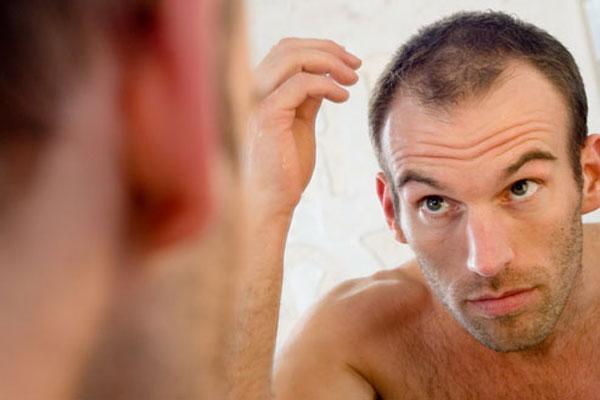 Выпадение волос у мужчин в молодом возрасте: причины и лечение