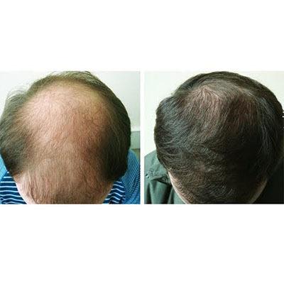 Виши для роста волос, от их выпадения и от перхоти