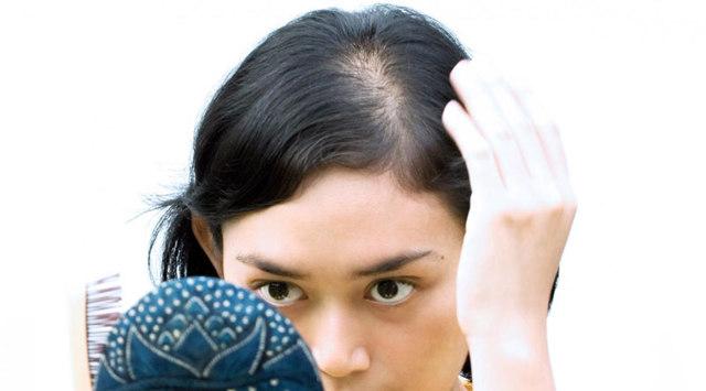 Как вылечить волосы от выпадения: современные методы лечения алопеции