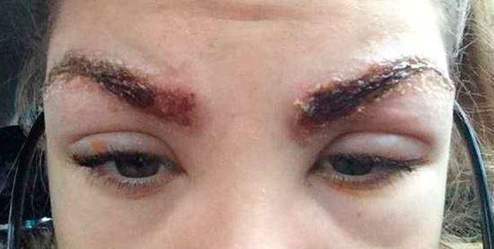 Выпадают брови: причина выпадения их у женщин
