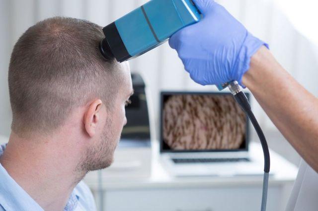 Грибок кожи головы: симптомы, диагностика, лечение