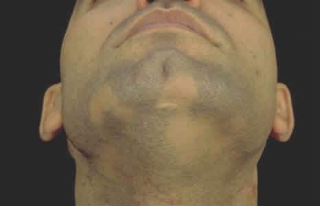 Облысение у мужчин: причины выпадения волос и лечение алопеции