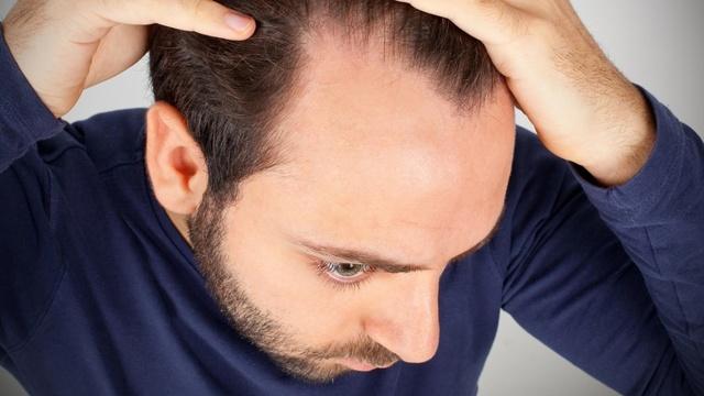 Почему выпадают волосы на голове у мужчин: причины, лечение