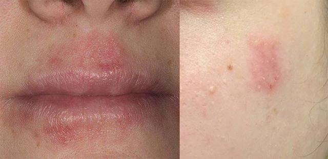 Как лечить себорейный дерматит (себорею) кожи головы