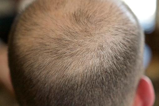 Наиболее распространенные причины выпадения волос