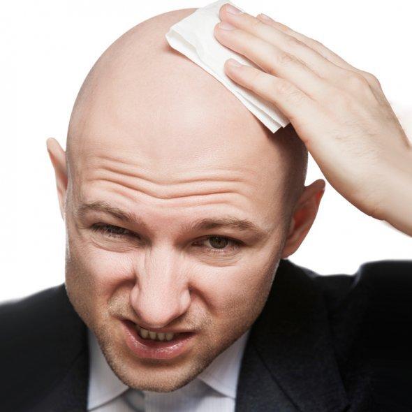 Как остановить выпадение волос у мужчины?