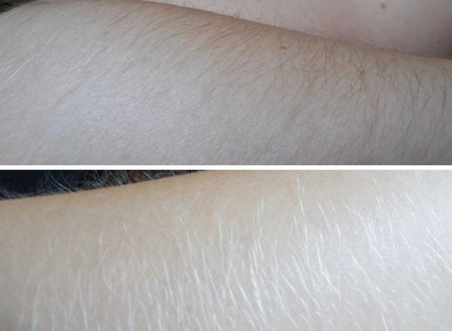 Удаление волос в интимных местах: с помощью крема и перекиси водорода