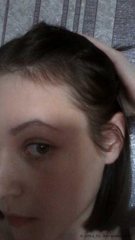Алерана для роста и от выпадения волос: отзывы о косметике