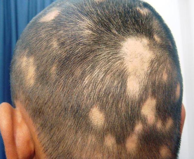 Шампунь Эстель для роста волос: отзывы о том как использовать