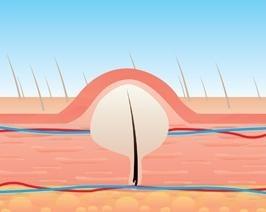 После эпилятора врастают волосы: что делать и как избежать проблемы