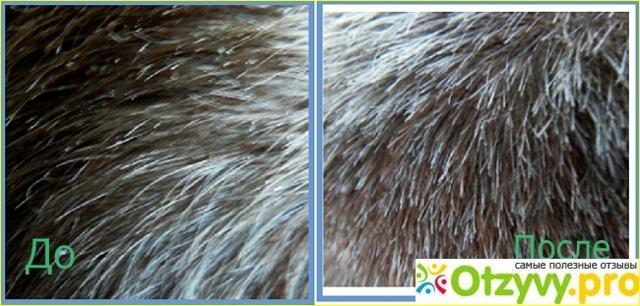 Дегтярный шампунь: отзывы о шампуне Мирролла от выпадения волос
