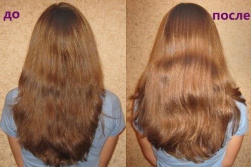 Ромашка для волос - настой, ополаскивание, польза, отзывы