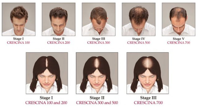 crescina для волос: отзывы и рекомендации