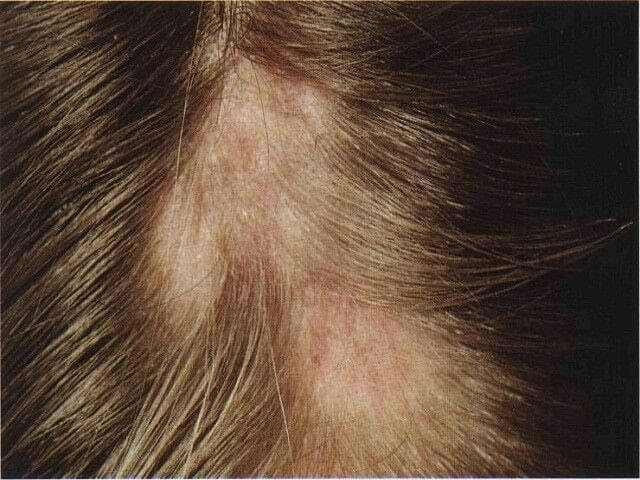 Алопеция рубцовая - описание, причины, лечение