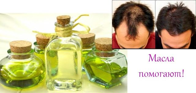 Масло от выпадения волос: как не ошибиться в выборе?
