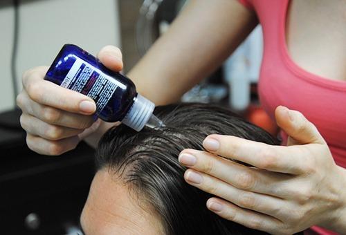 Лечить гиперкератоз кожи головы в домашних условиях