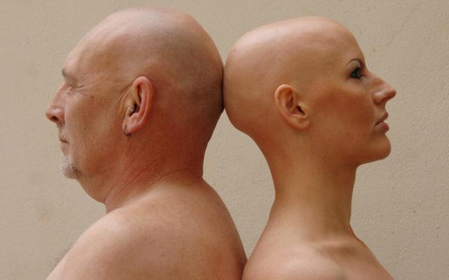 Тотальная алопеция лечение универсальной формы у женщин и детей