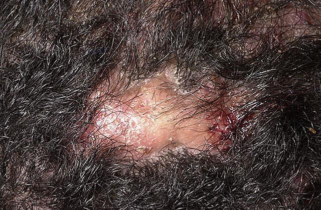 Воспаление волосяной луковицы: причины, симптомы и лечения фолликулита