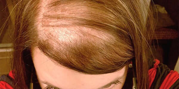 Диффузное выпадение волос(алопеция): лечение негормональной этиологии у женщин