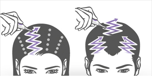 Шампунь Виши Неоженик для густоты волос: отзывы о нем, его свойства и состав